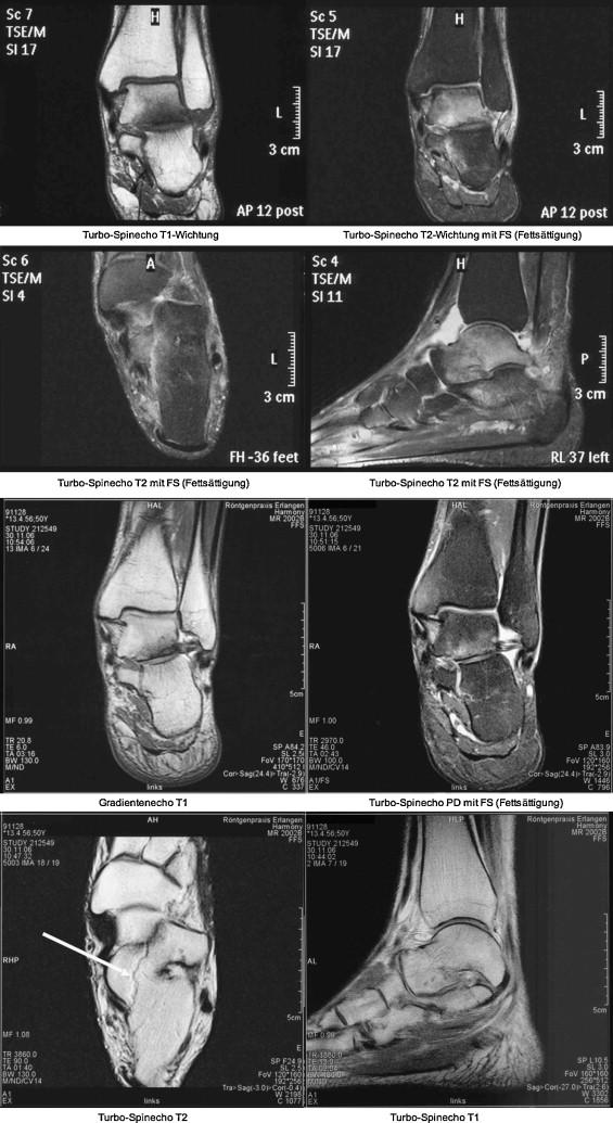 Darstellung von Knochen und Knorpel des Fußes im MRT - ScienceDirect