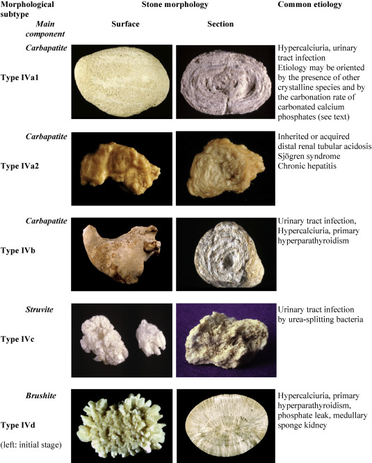 Comprehensive Morpho Constitutional Analysis Of Urinary Stones Improves Etiological Diagnosis And Therapeutic Strategy Of Nephrolithiasis Sciencedirect