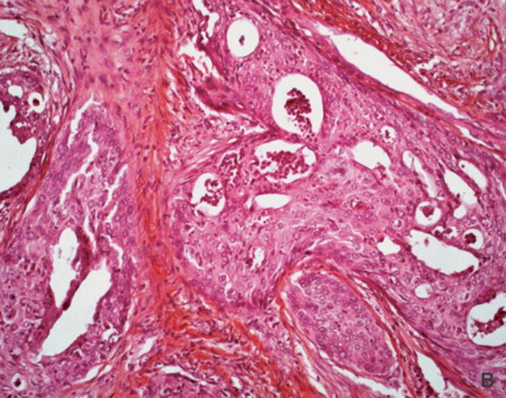 Tumores de las glándulas salivales - ScienceDirect
