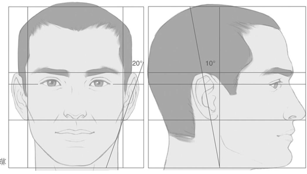 Anatomía del oído externo - ScienceDirect