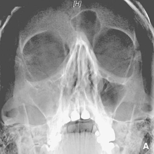Resultado de imagen para rayos x sinusales