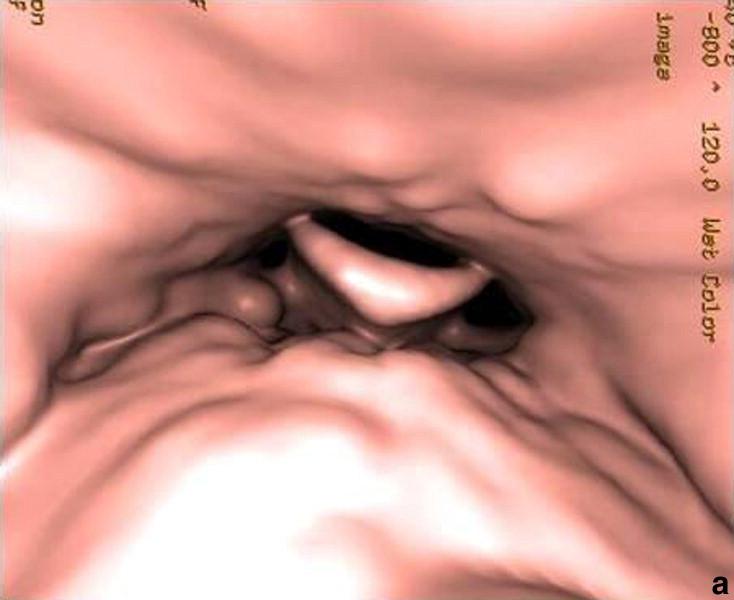Anatomía descriptiva, endoscópica y radiológica de la laringe ...