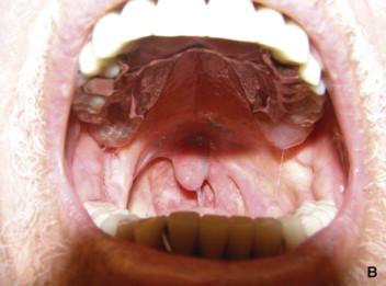perdida de peso despues de una operacion de mandibulectomia segmentaria