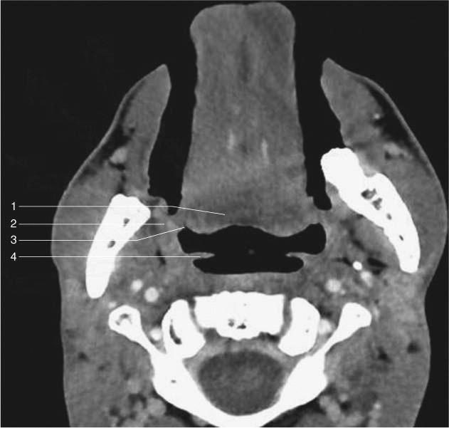 Anatomía descriptiva, radiológica y endoscópica de la faringe ...