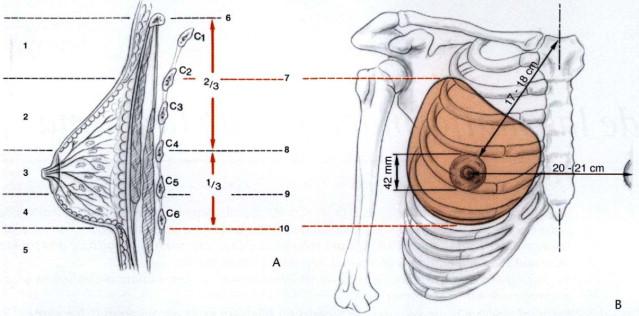 Cirugía de las malformaciones de la mama - ScienceDirect