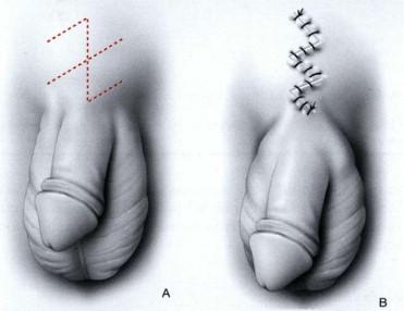 erección retráctil sin descargar