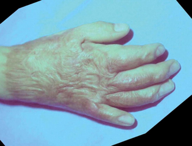 Tratamiento de las secuelas de quemaduras. Quemaduras de la mano ...