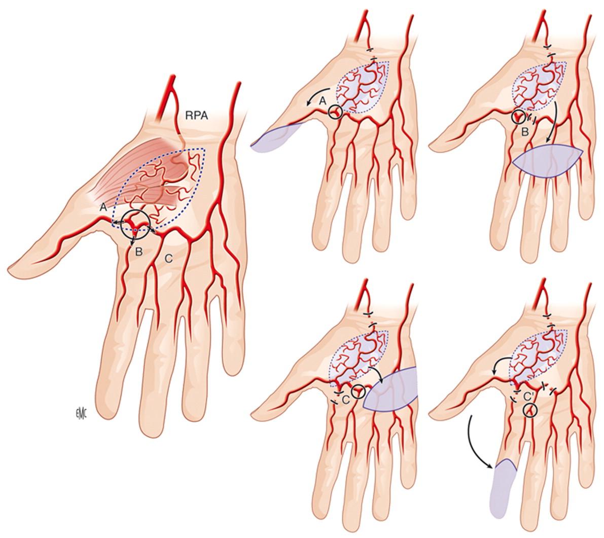 Cobertura cutánea de la mano y de los dedos - ScienceDirect