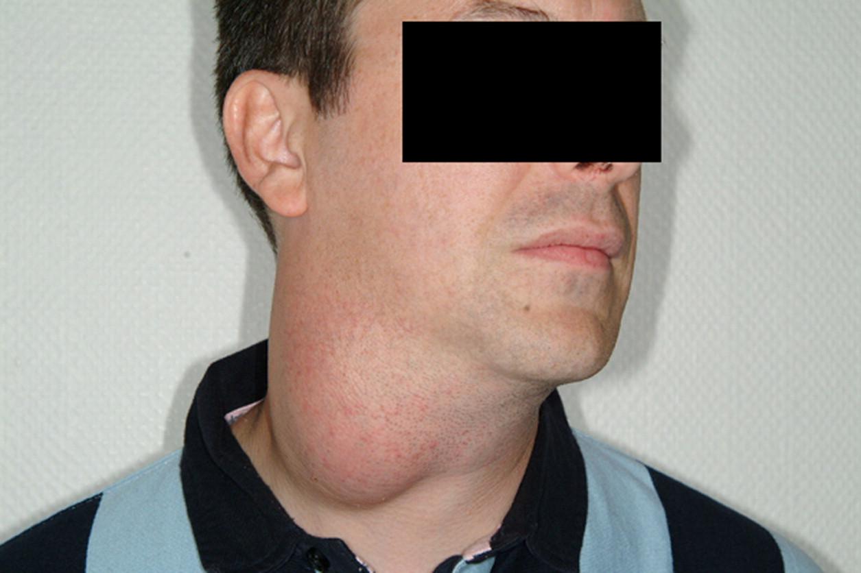 Cirugía de los quistes y fístulas de la cara y el cuello - ScienceDirect