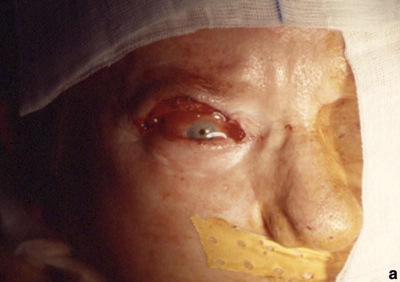 Cirugía reconstructiva de los párpados - ScienceDirect