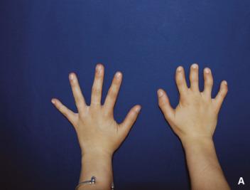 agenesia mano derecha