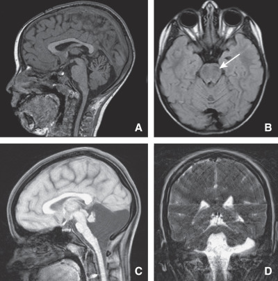 agenesia+cerebellare+neuropatia+ottica