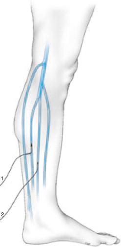A posterior la trombo superficial de ablación extensión