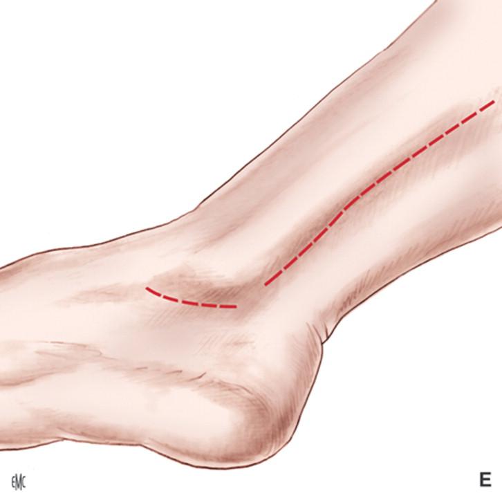 Tobillo y y arterias del pie venas