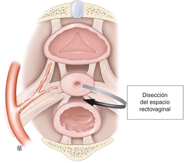 Tratamiento quirúrgico del cáncer de cuello uterino por laparotomía ...