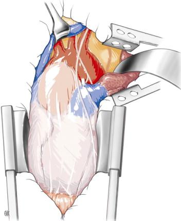 Cirugía de la aorta torácica descendente - ScienceDirect