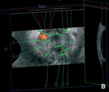 resonancia magnética multiparamétrica de próstata dónde hacerlo en Sicilia 2020