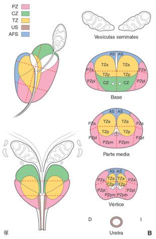 reducción volumétrica de próstata