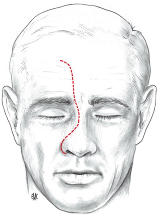 infección sinusal ojos costrosos