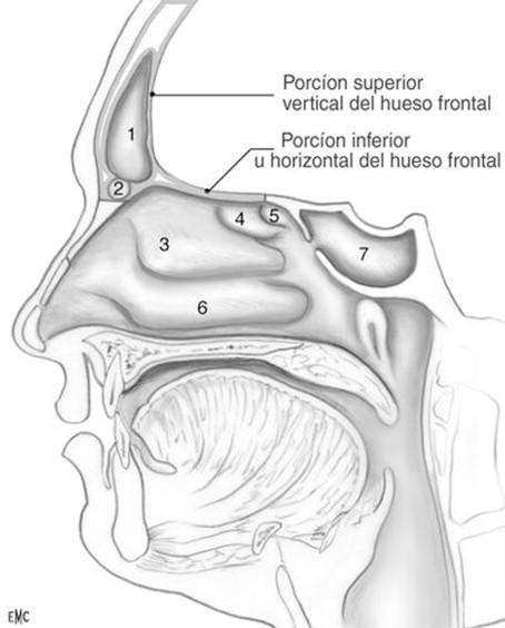 Cirugía del seno frontal (excluidos tumores y traumatismos ...