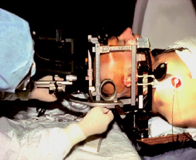 Cirugía ORL asistida por ordenador - ScienceDirect