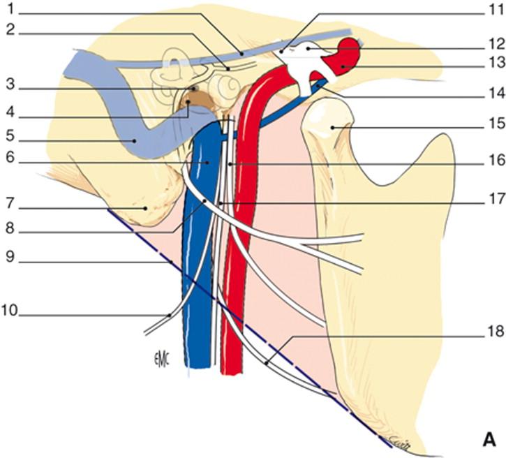 Acceso quirúrgico de la arteria carótida interna intrapetrosa ...
