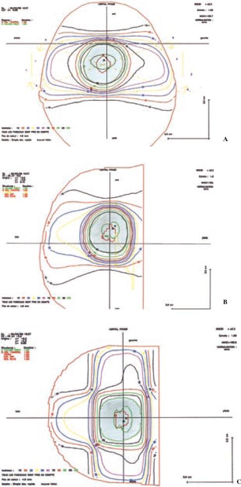 Efectos secundarios del acelerador del plexo