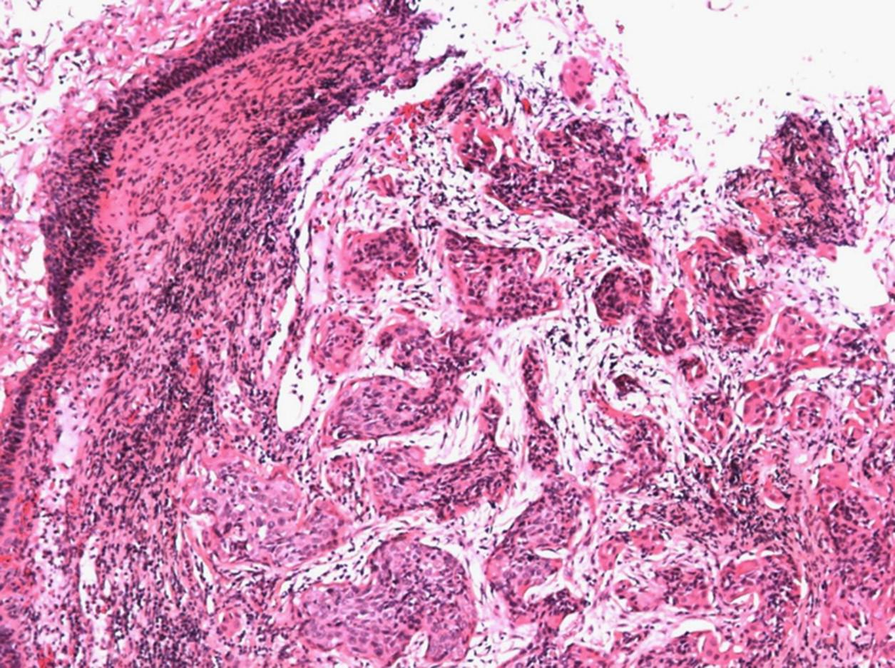 Cáncer de cuello uterino - ScienceDirect
