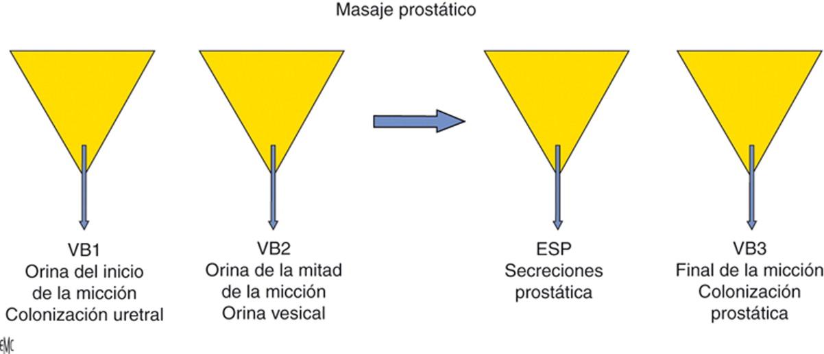 La prostatitis es una infección ________ crónica o aguda de la glándula prostática.