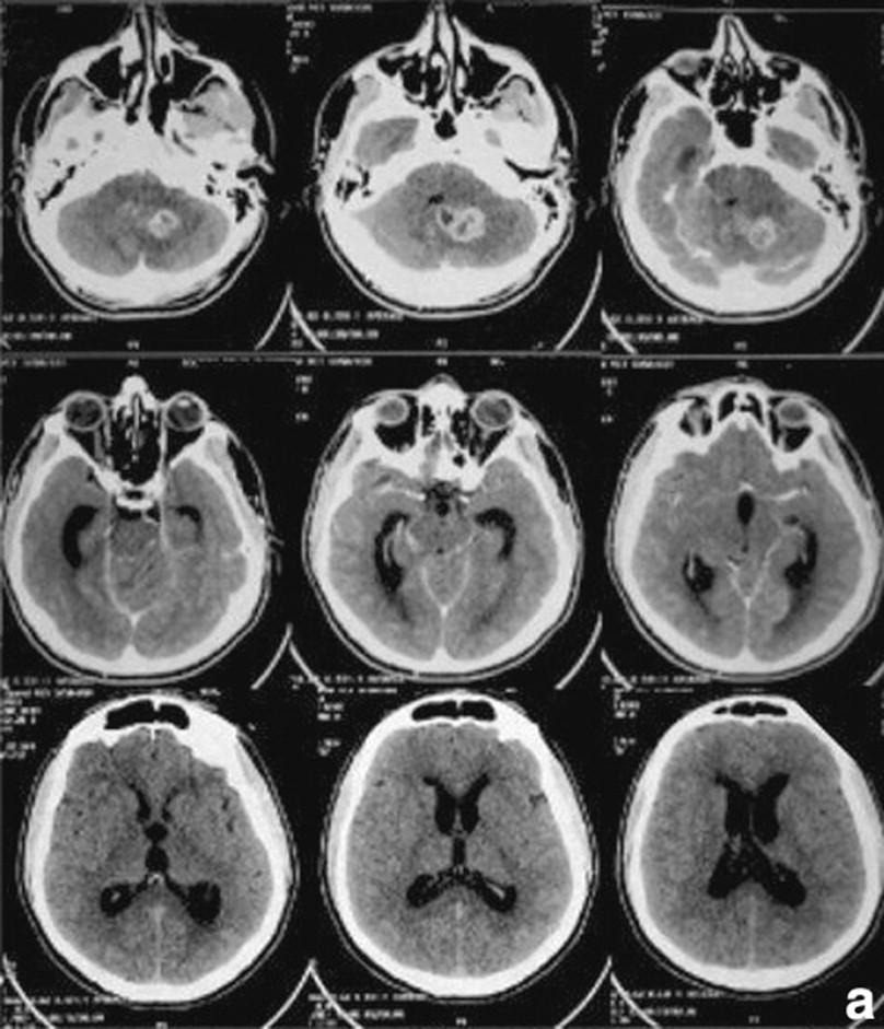 Hidrocefalia afecta a adultos
