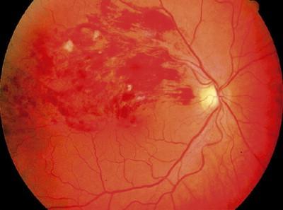 síntomas tortuosos de las venas retinianas