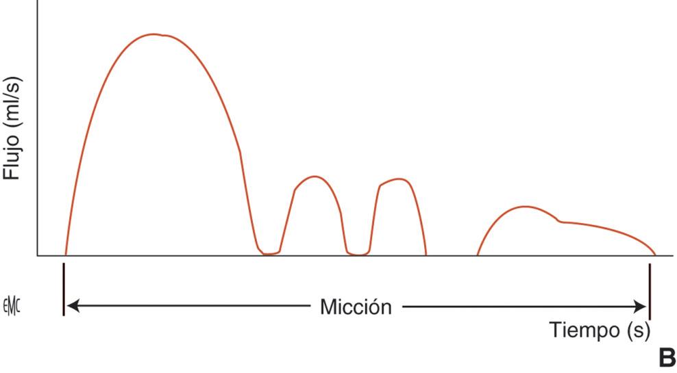 La terazosina causa micción frecuente