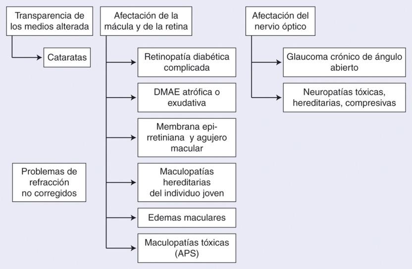 dificultades de visión monocular y diabetes