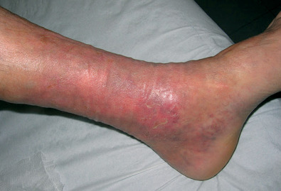 piernas hinchadas rojas y con dolor
