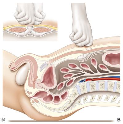 dove si trova la prostata video download
