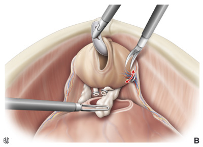 posizione allargata del dolore alla prostata