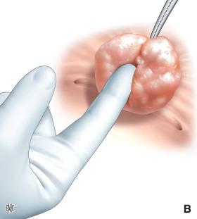 prostatectomia che rimuove la prostata dalluretra