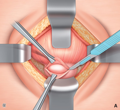 costo delloperazione della ghiandola prostatica in pugno