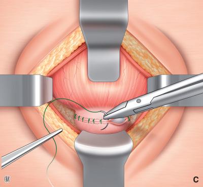 come si calcola il volume del terzo lobo della prostata