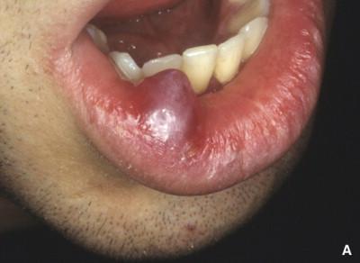 denti falsi datati Sala incontri in CTG