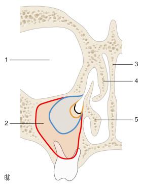 agenesia dei seni frontali a 15 anni 2