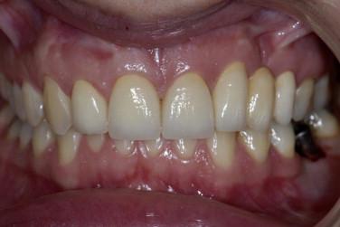 agenesia de terceiros molares