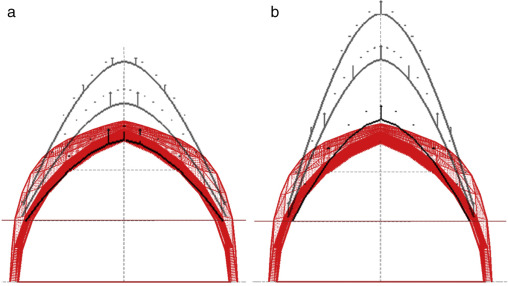 Analytical and Numerical funicular analysis by means of the