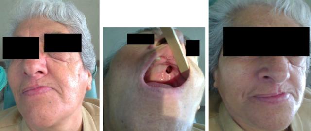 sintomas de cancer senos paranasales
