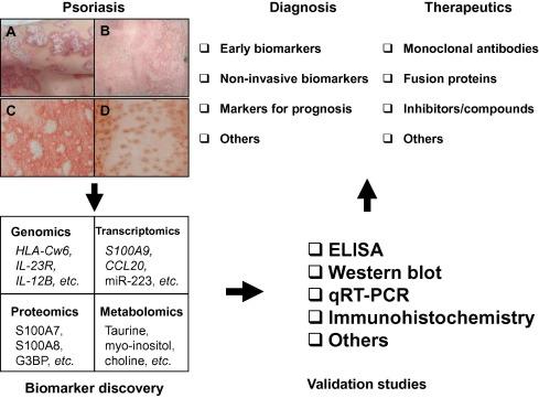psoriasis diagnostics