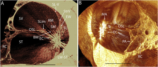 inner ear partition ars b