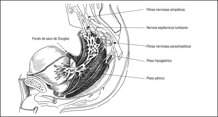 Cistoprostatectomía radical con preservación neurovascular para el ...