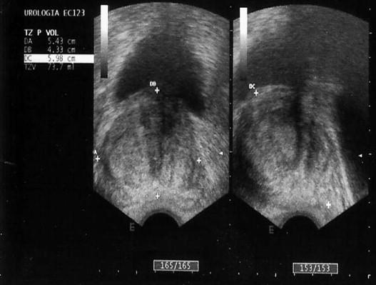 prostatitis granulomatosa crónicas
