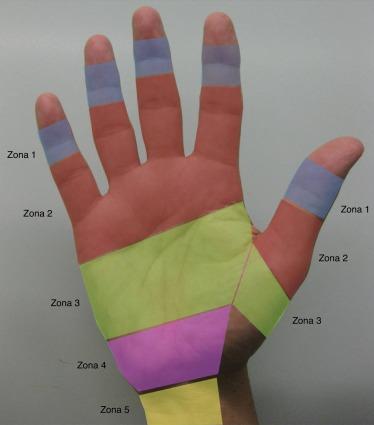 Anatomía aplicada a la cirugía de los tendones flexores - ScienceDirect