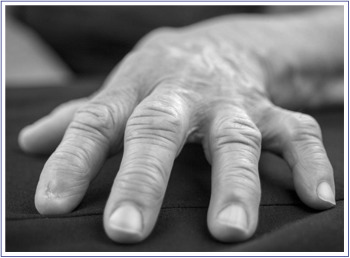 diabetes y dolor de dedos